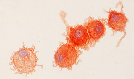 An image of dendritic cells.