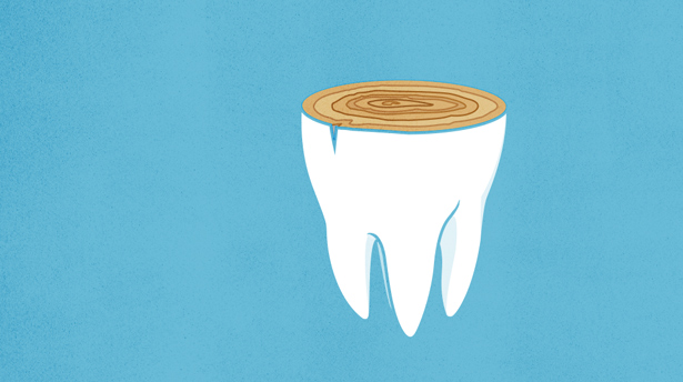 Illustration: sliced tooth showing tree rings
