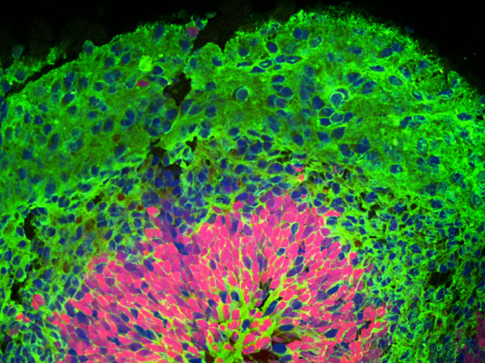 A stained cross section through one of the cortical organoids created by researchers at the Yale Stem Cell Center shows the organization of various cell types into layers of tissue. The organoid is 40 days old in this image. The blue dots are cell nuclei; the red patches are progenitor cells for neurons; the green patches are differentiated neurons.