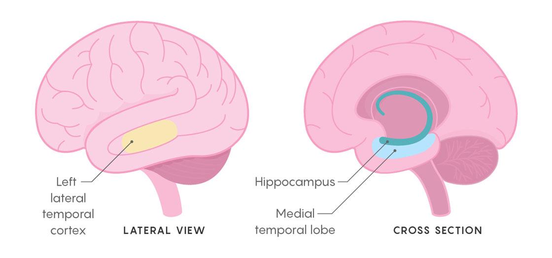 With Strategic Zaps To The Brain Scientists Boost Memory Quanta