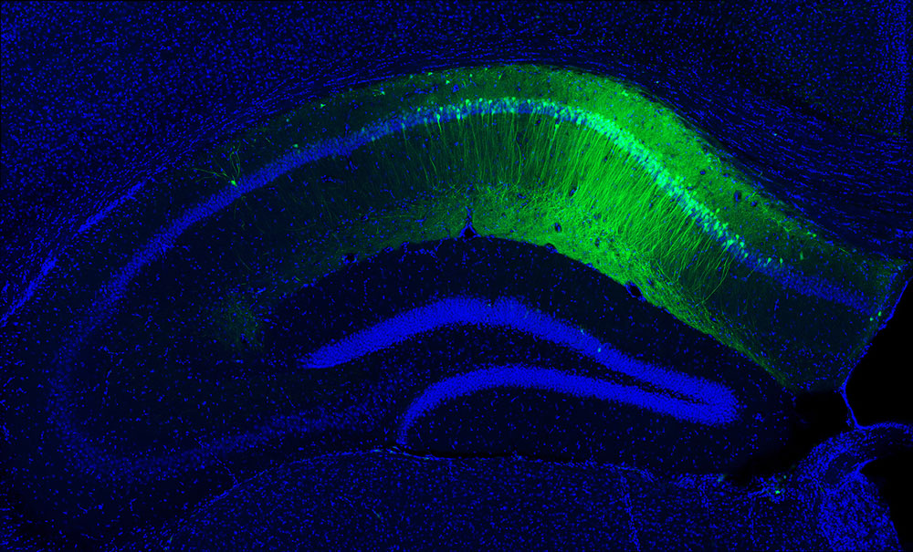 Photo of magnified Hippocampal-CA1 of a mouse.