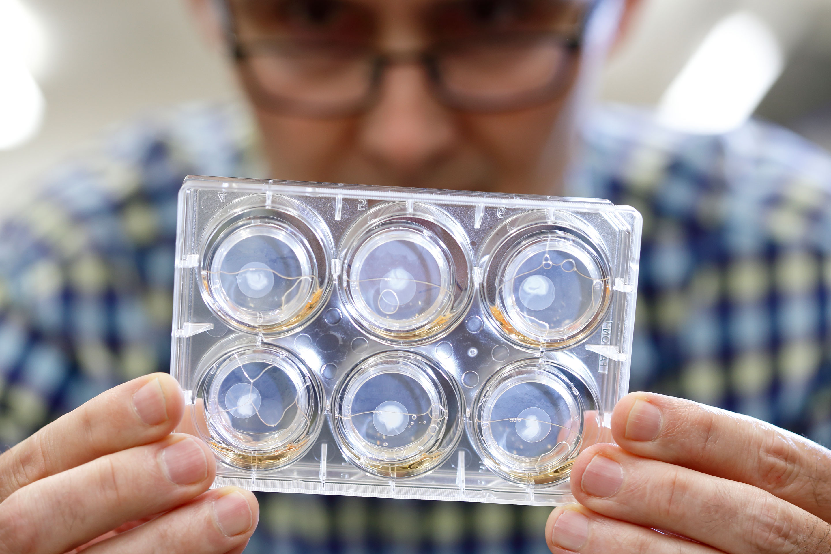 Photo of a Caucasian man wearing a blue plaid shirt holding a clear plastic case with 6 lab samples.