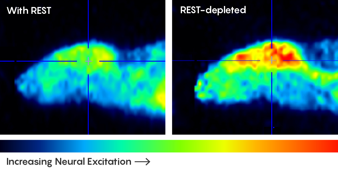 PET-CT scans of mice show that more neural activity is present in mice that are deficient in the REST protein.