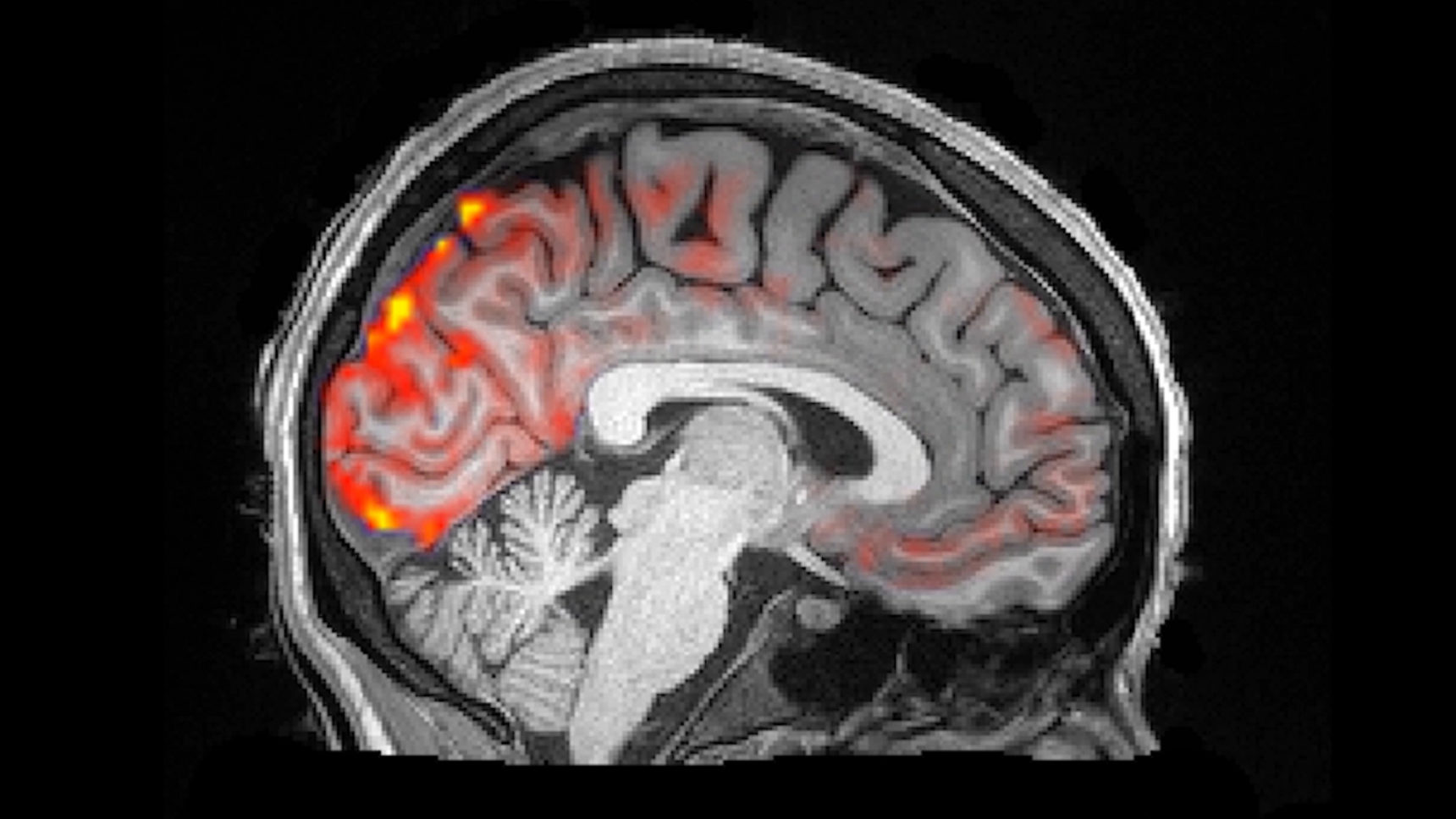 While human subjects slept, scientists used an MRI technique to observe a cyclic pattern of fluid movement in their brains. In this video, red indicates where oxygenated blood flow is abundant, while blue represents influxes of cerebrospinal fluid. The results suggest that as blood moves out of the brain in response to lower neural activity, cerebrospinal fluid rushes in to fill the available space.