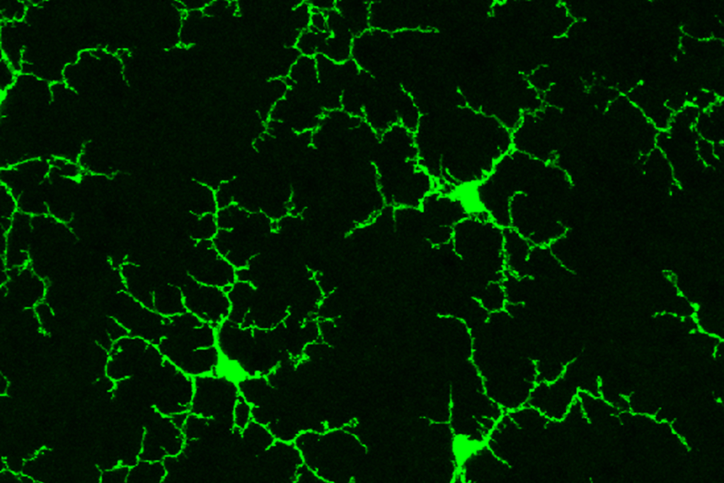 Many-armed green cells with complex shapes on a black background.