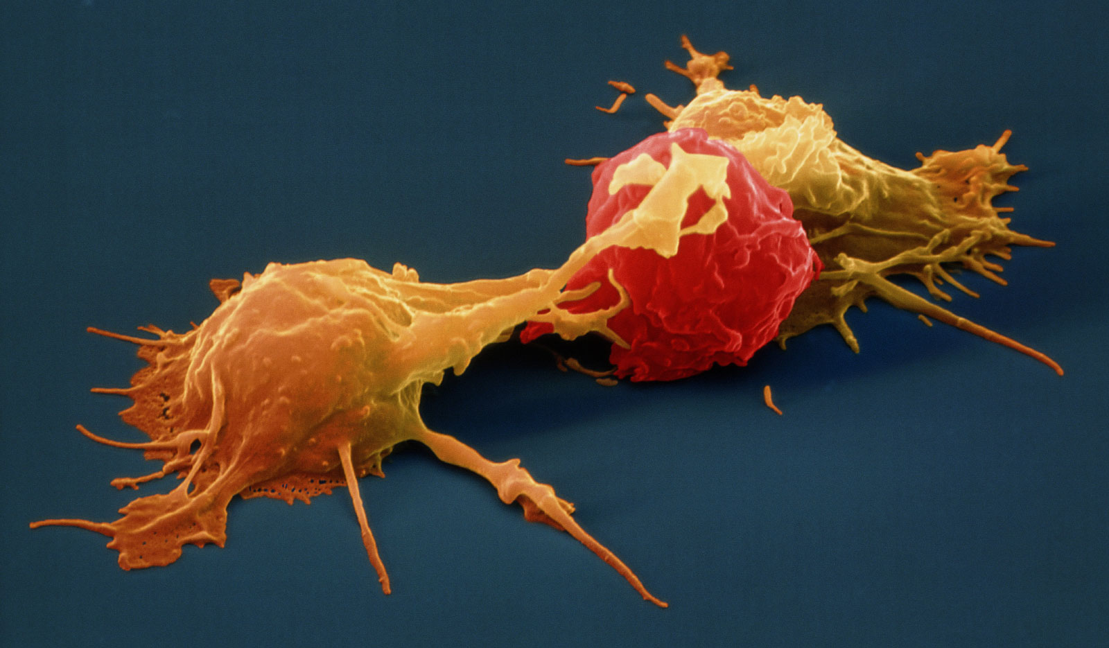 Two natural killer cells attack a tumor cell.
