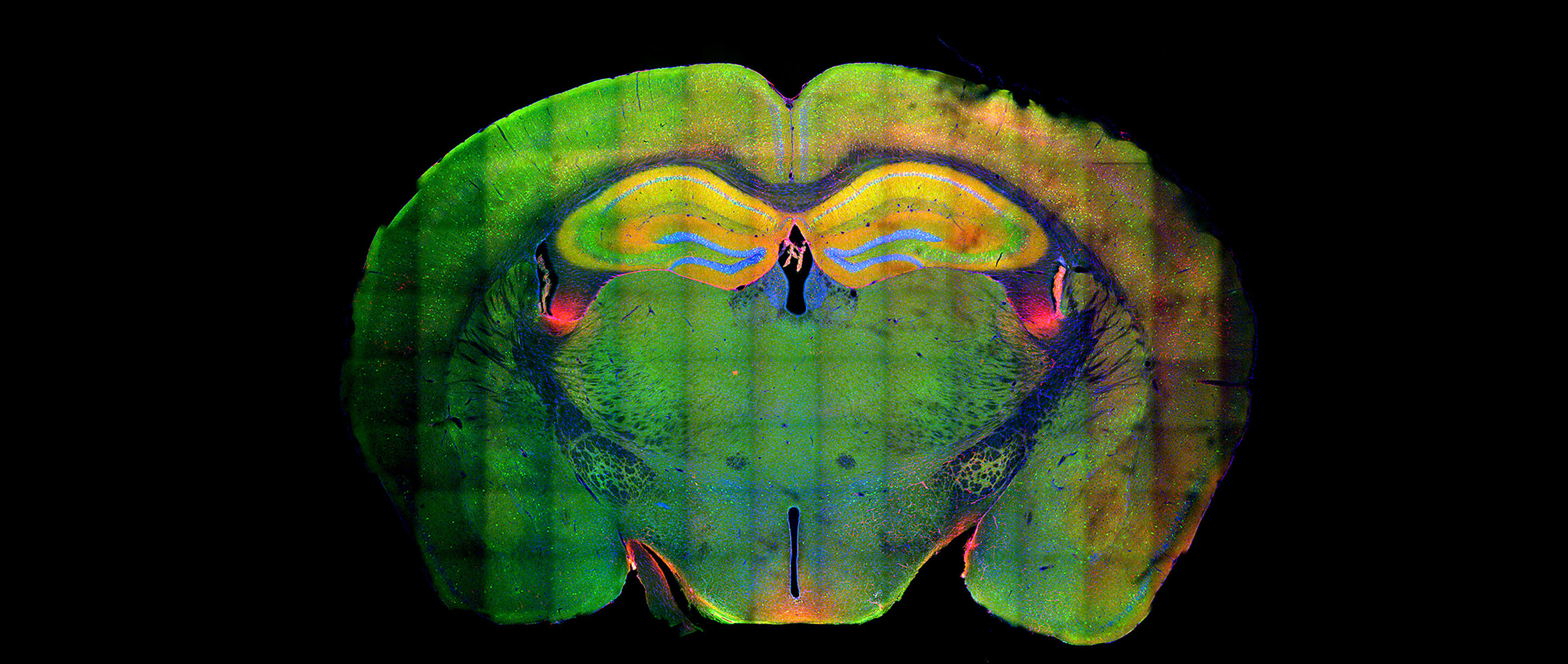 Fluorescent cross-section of a mouse's brain.