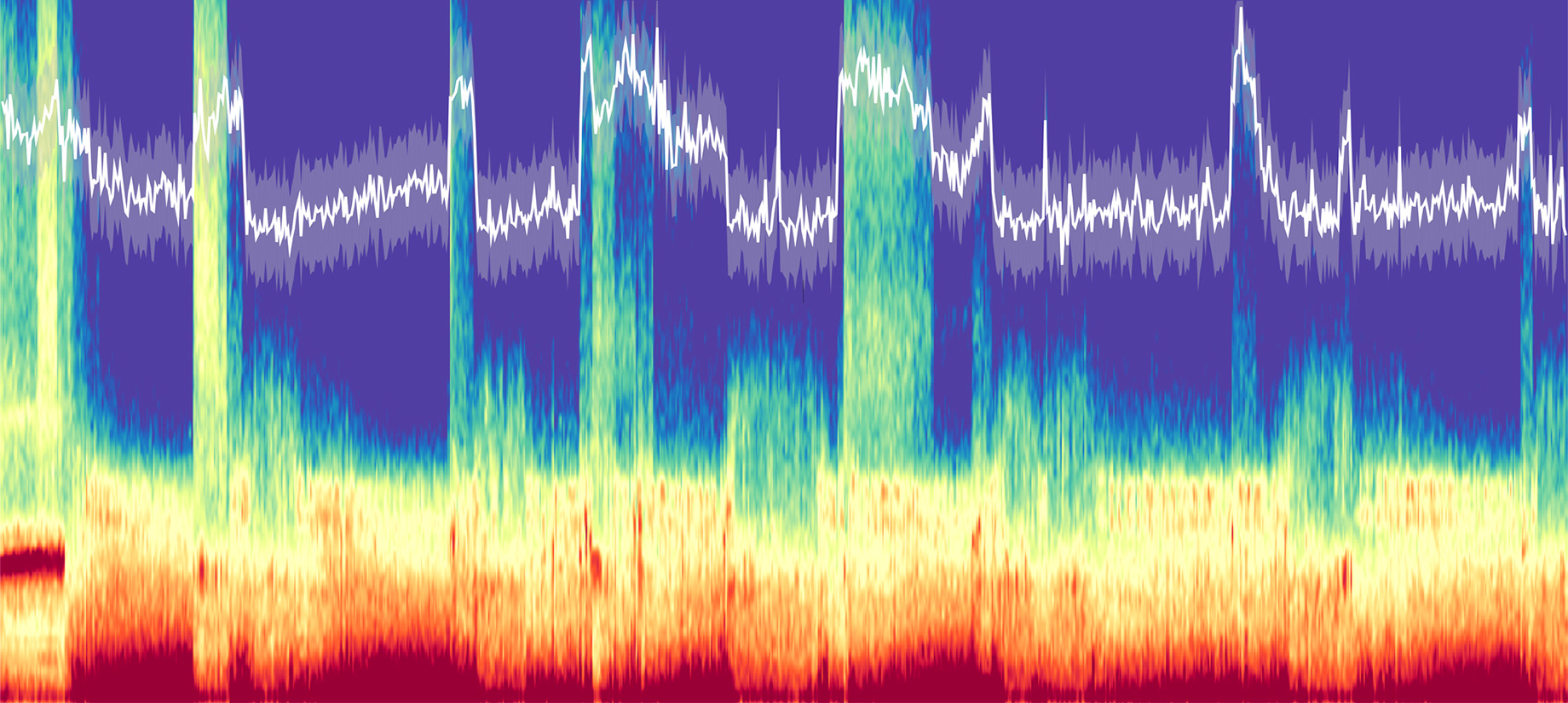 Spectrogram of brain activity collected over a full night of sleep.