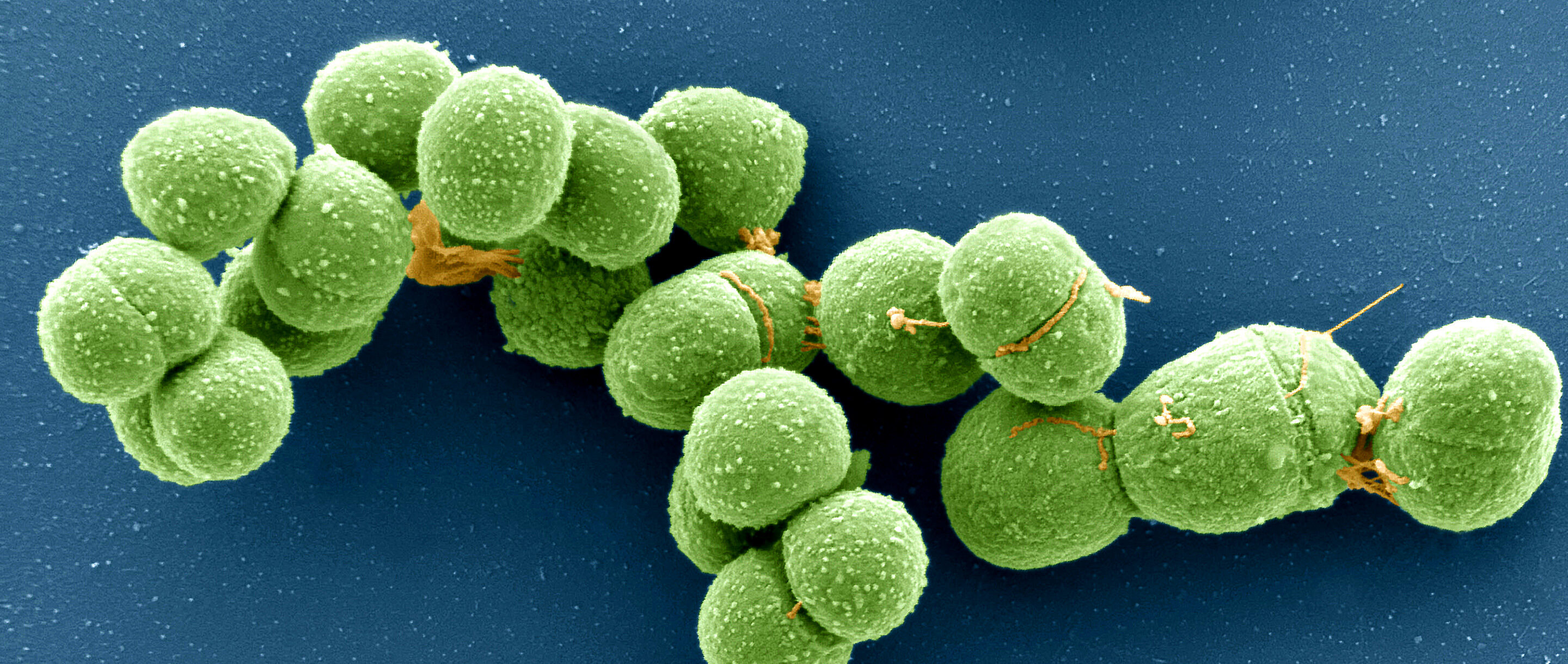 Micrograph of archaeal cells.